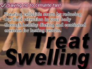 Saying no to cellulite fast