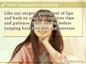 Swift liposuction recovery