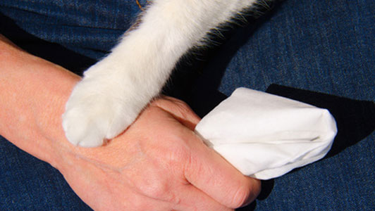 cat paw on hand of woman holding tissue