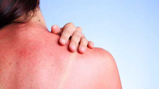 sunburnt woman with hand on shoulder