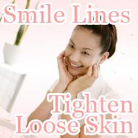 tighten Loose Skin Smile Line